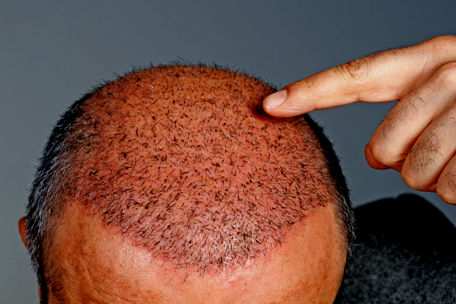 What To Expect After a Hair Transplant in Pittsburgh with Sistine Facial Plastic Surgery