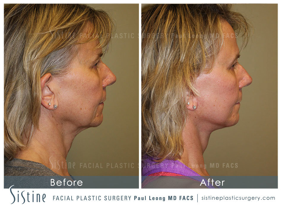 Pittsburgh High SMAS Facelift - Preoperative Right Lateral View | Sistine Facial Plastic Surgery