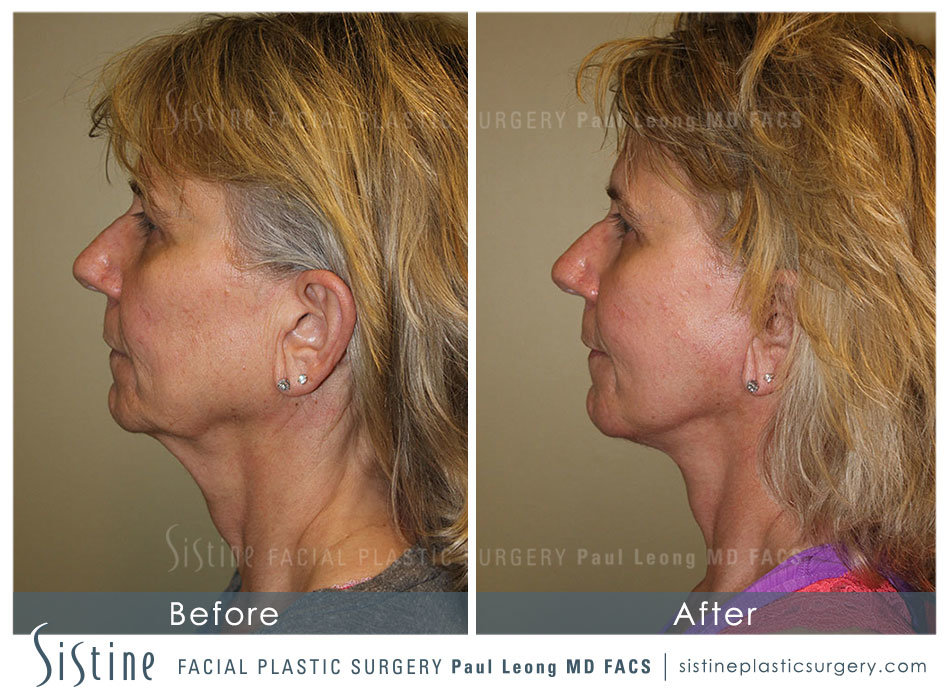 Pittsburgh High SMAS Facelift - Preoperative Left Later Chin Tucked View  Sistine Facial Plastic Surgery