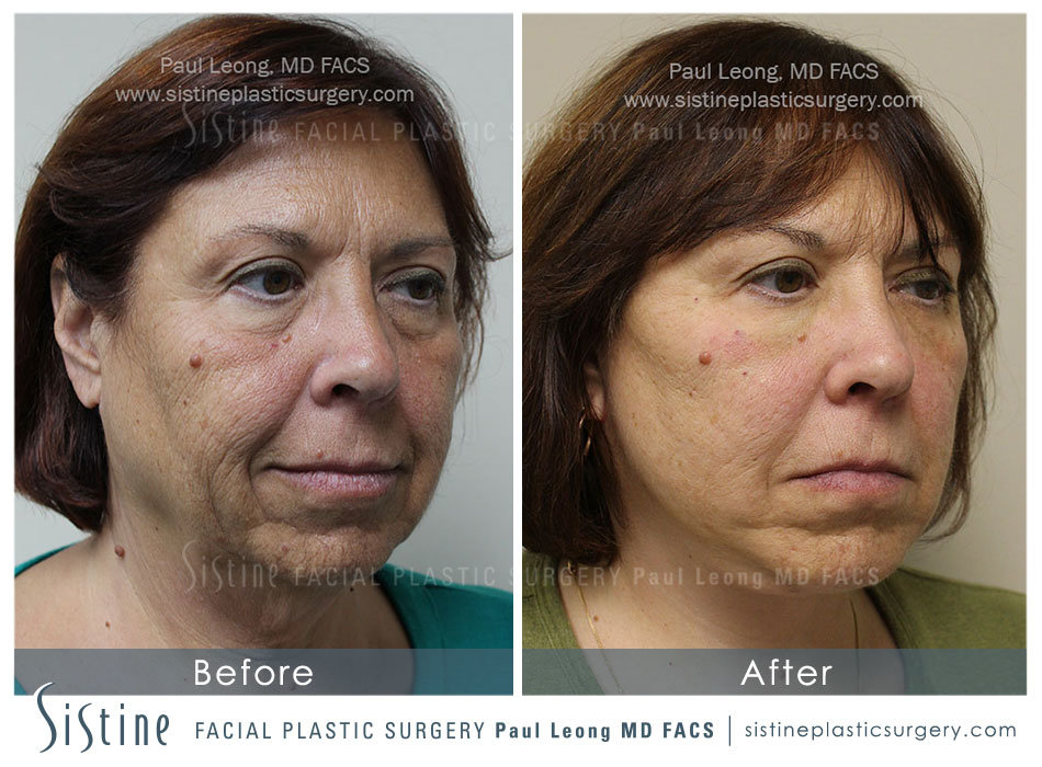 Pittsburgh Facelift Pictures - Before Surgery | Sistine Facial Plastic Surgery