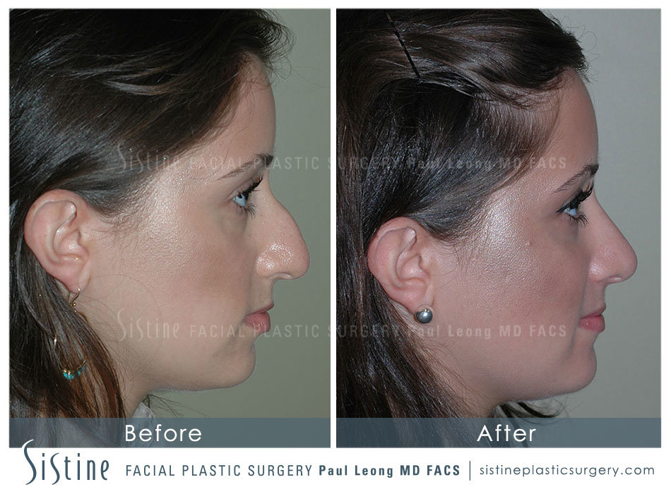 Rhinoplasty Before And After 03 Sistine Facial Plastic Surgery