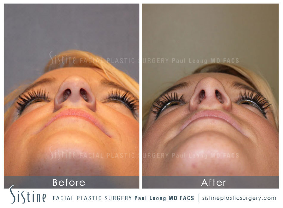 Pittsburgh Nose Job Surgery - Preoperative Basal View | Dr. Paul Leong