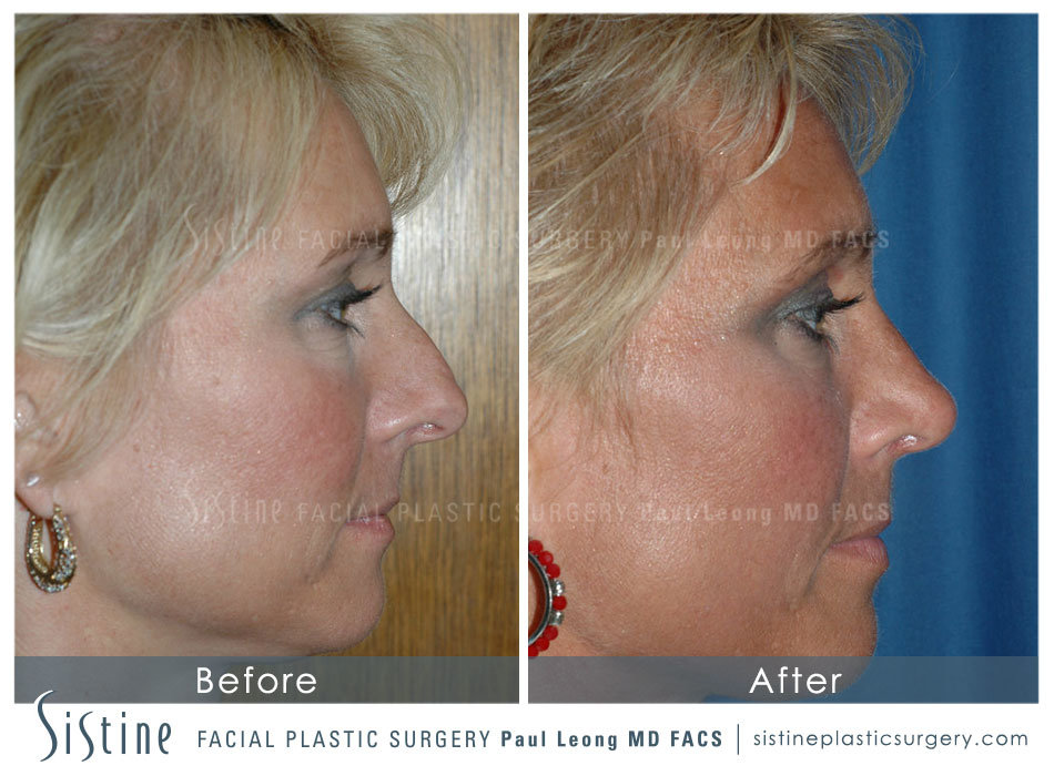 Rhinoplasty Before and After 13   Sistine Facial Plastic Surgery